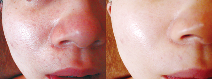 facial_before-after_01