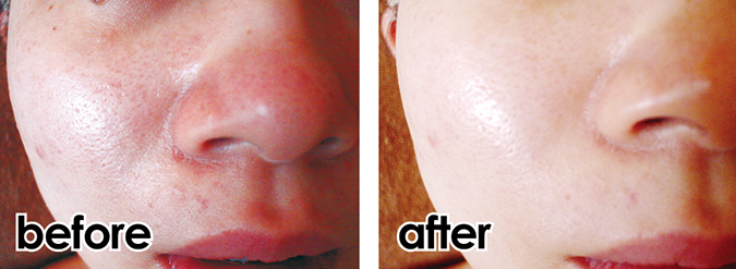 facial_before-after_02